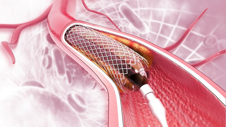 Cell-Selective Nanotherapy Prevents Vessel Renarrowing and Promotes Healing of Arteries Opened by Angioplasty