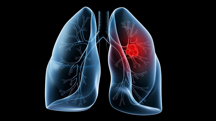 Detection of Lung Cancer Aided by a Simple Blood Test