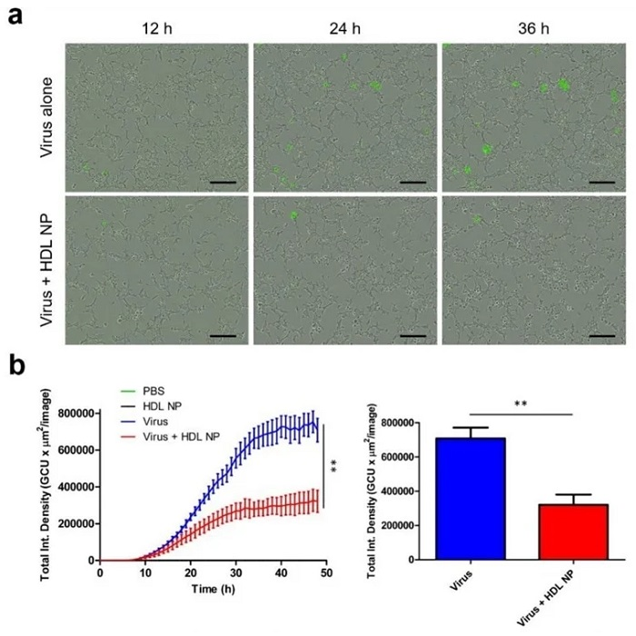 HDL NP treatment inhibits infection of SARS-CoV-2 pseudovirus in HEK293 (ACE2) cells